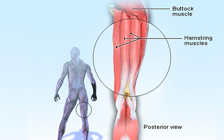 Symptoms of a Pulled Hamstring